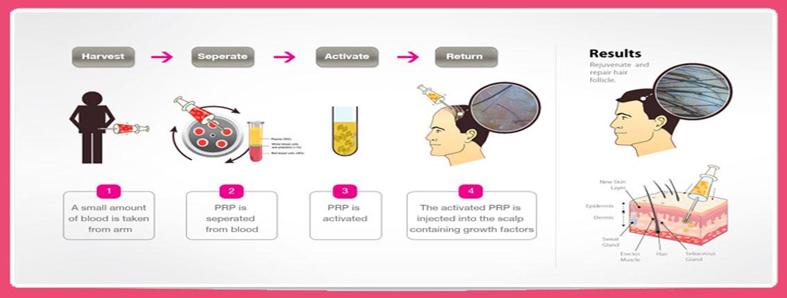 Hair growth injection scalp
